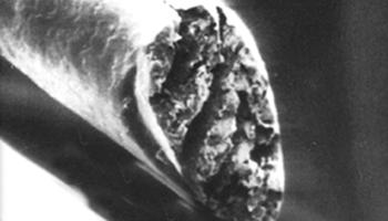 carecut-unter-dem-mikroskop-normaler-schnitt