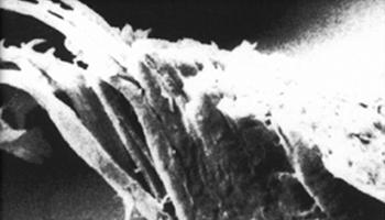 carecut-unter-dem-mikroskop-problem